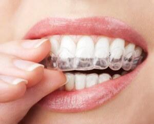 tanden-bleken-witte-tanden